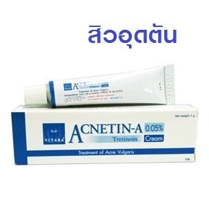 VITARA Acnetin-A 0.05% Cream 7G ไวทาร่า แอคเนติน- เอ สูตรเดียวกับ Retin-A รักษาสิว ควบคุมความมันบนใบหน้า สำเนา